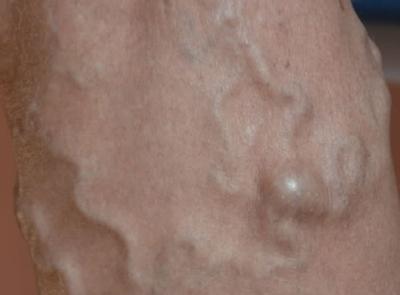 acupunctura din vene varicoase)